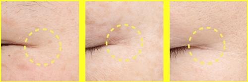 目尻のシワに対する効果ありと 臨床試験にて証明されています